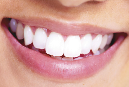 cost of dental implants in Jacksonville